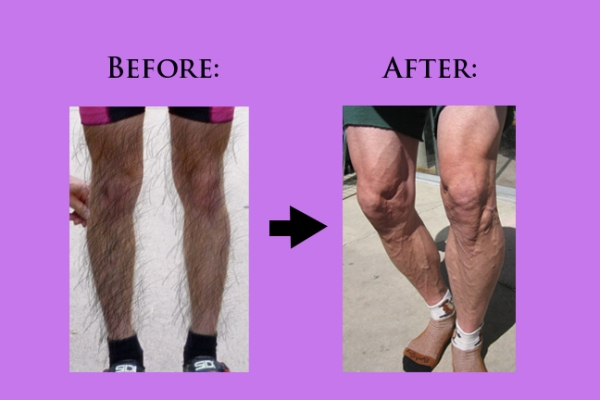 BeforeAndAfterLegs